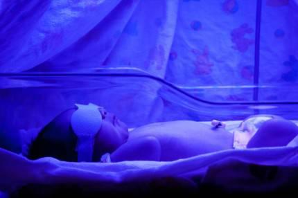 Neonato affetto da ittero sotto lampada UV