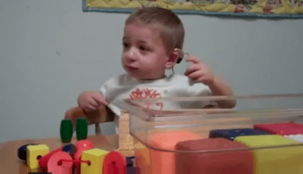 Bambino con impianto cocleare