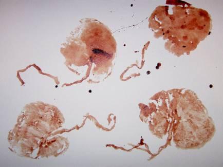 placenta-forma d arte