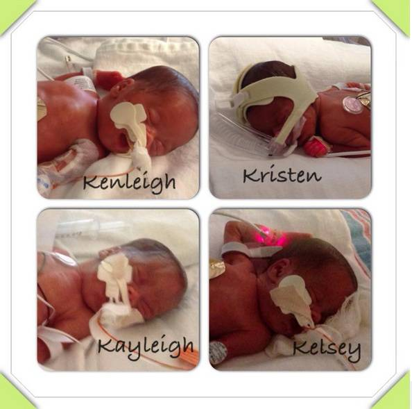 Le quattro gemelline in terapia intensiva