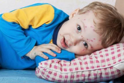 primo piano bambino con varicella