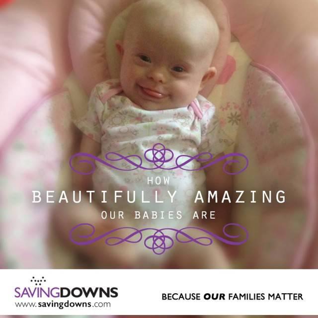neonato sindrome down
