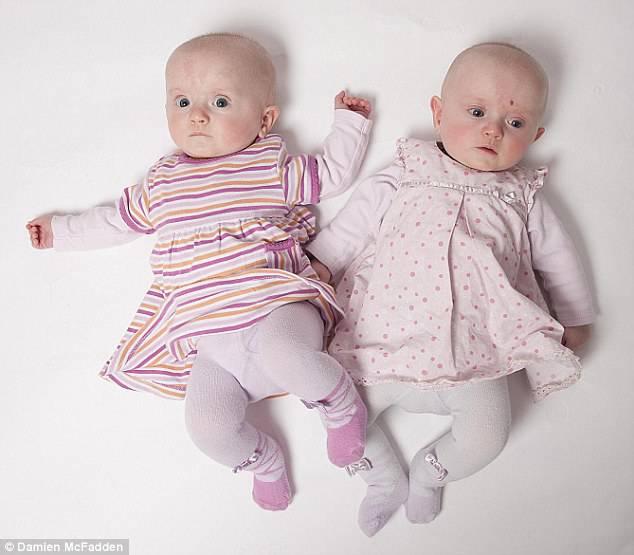 4 generazioni di gemelli: un caso su 4 miliardi! (FOTO)