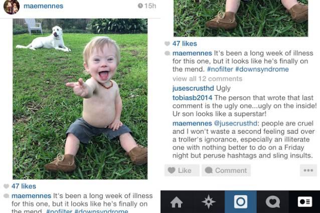 Una mamma risponde ai commenti sul figlio con la Sindrome di Down: è bullismo