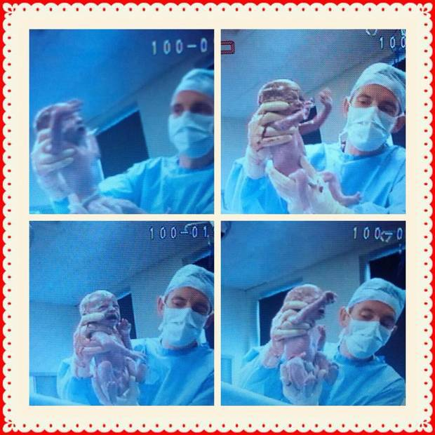 nascita 4 gemellini