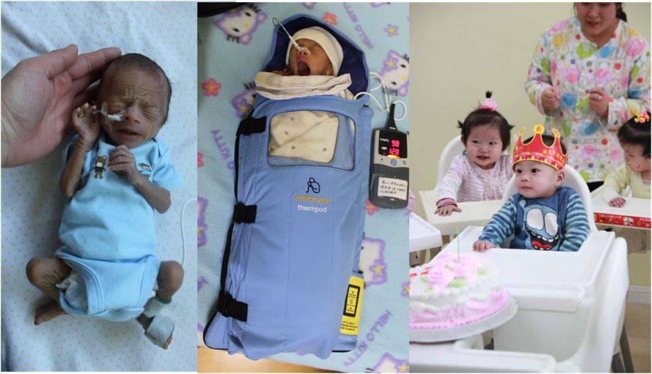 storia di una bimba grazie a Embrace