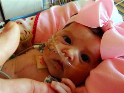 neonata dopo operazione