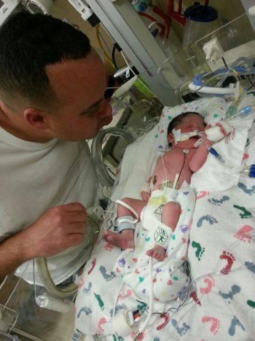 neonata intubata col papà