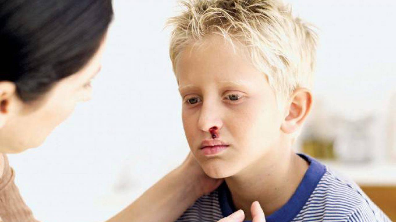 come smettere di perdere sangue dal naso