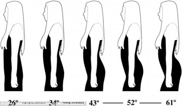 curvatura spinale