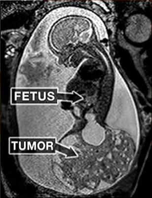 ecografia bimba con tumore