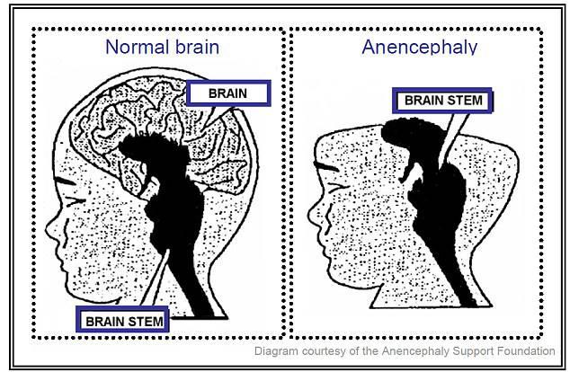 anocefalia