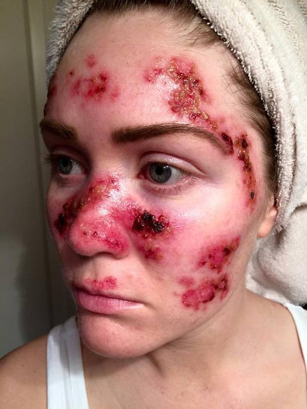 cancro alla pelle