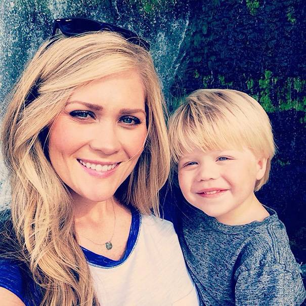 """Mamma posta un selfie del suo volto deturpato per dire: """"Non lasciate che l'abbronzatura vi impedisca di veder crescere i vostri figli"""" (FOTO)"""