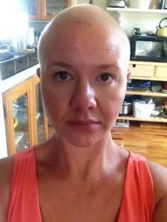 alopecia in gravidanza 2