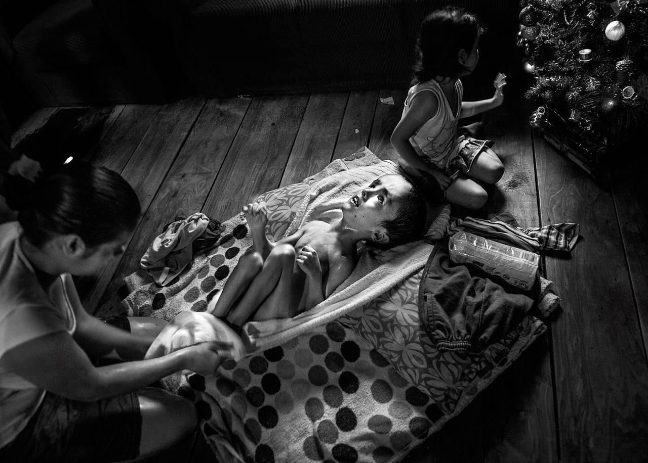 Fabián Piris, 8 anni soffre di idrocefalia dalla nascita.