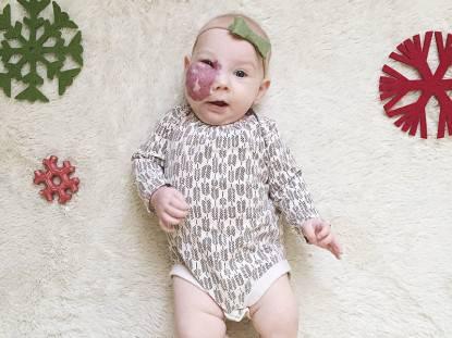 bambina con angioma