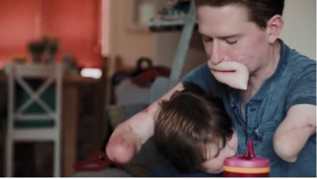 Il papà di un bambino di 3 anni lotta per riconquistarlo dopo le amputazioni