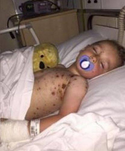 bambino con varicella