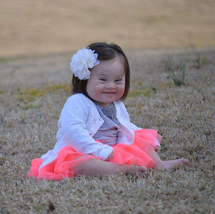 emmy bambina con la sindrome di down 2