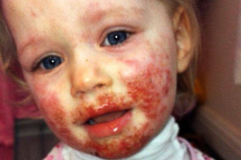 pay-child-with-herpes-on-face