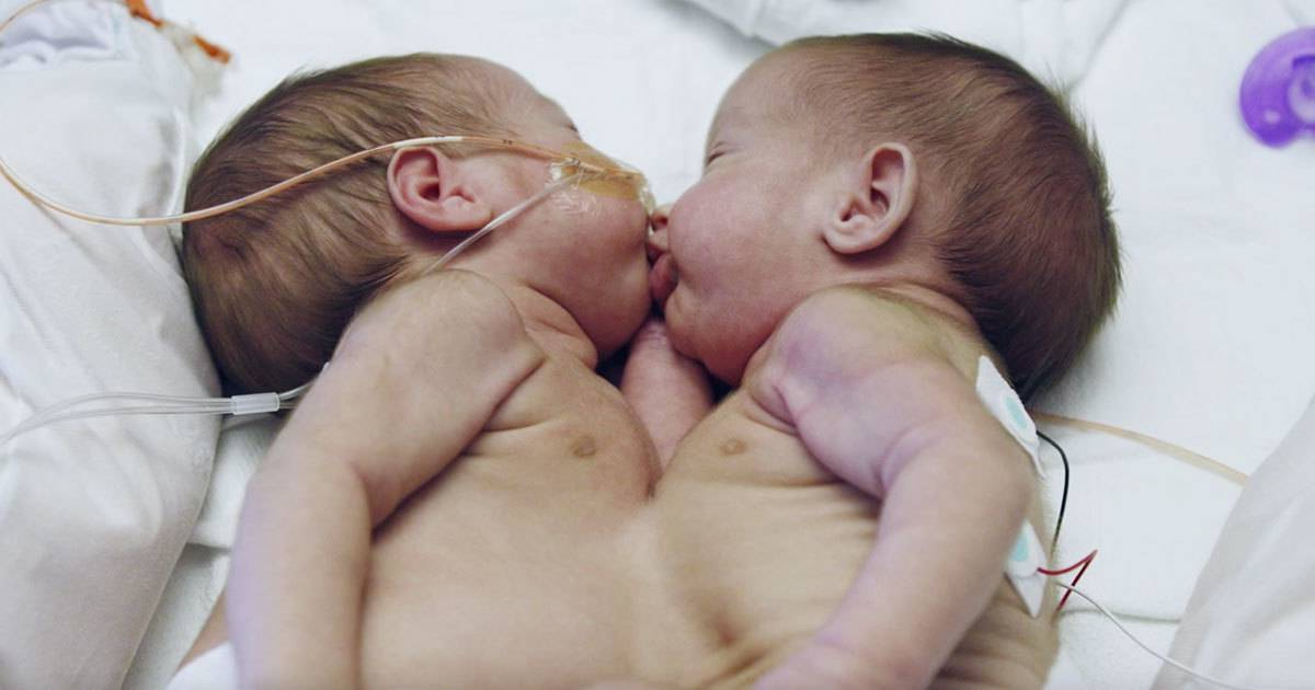 conjoined_twins