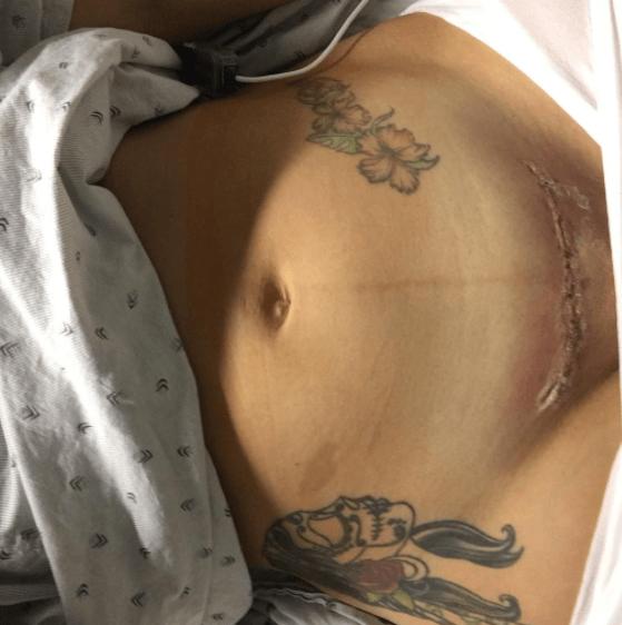 donna-mostra-taglio-cesareo