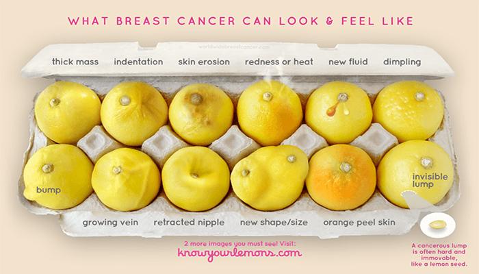prevenzione del cancro al seno