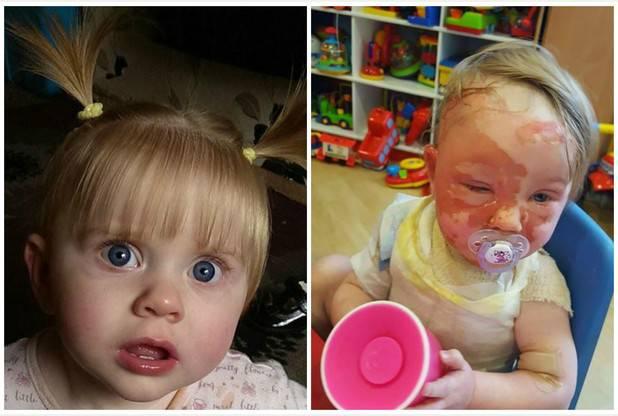 Una bambina ha rischiato la vista a causa di un incidente domestico – FOTO