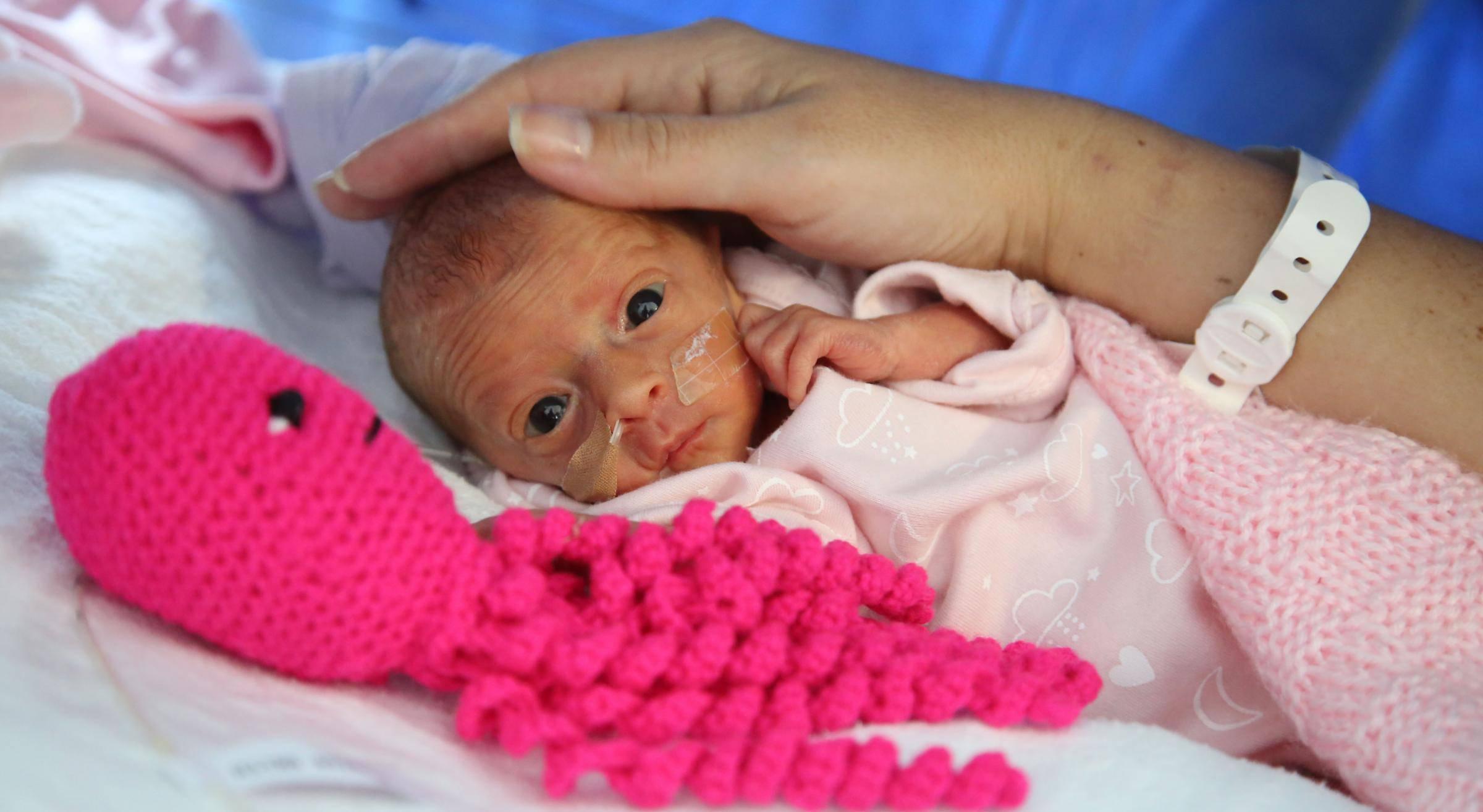 Il polpo per i neonati prematuri: l'amico che li cura (FOTO)