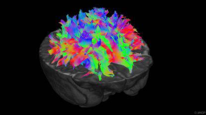 sviluppo cervello dei bambini