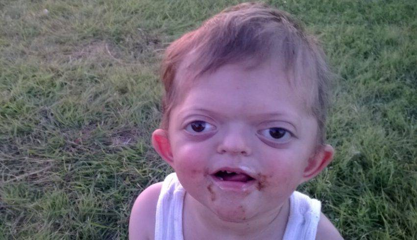 bambino disabile deriso da un meme