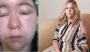 reazione allergica in gravidanza