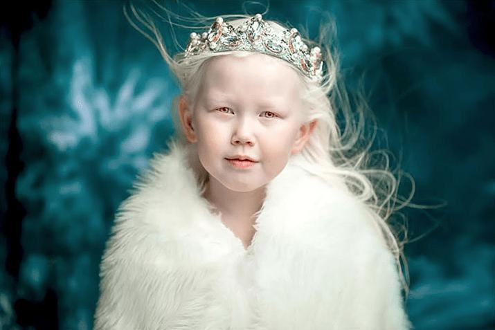 bambina siberiana albina