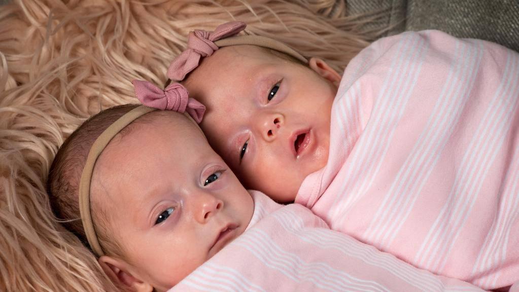 gemelline sopravvissute