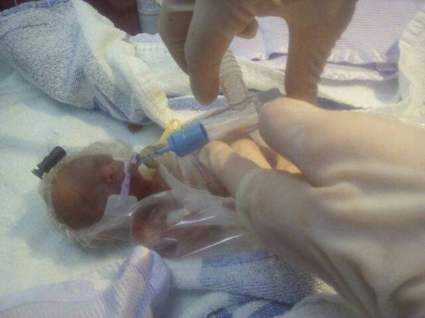 bambina prematura