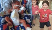 bambino nato con gli organi fuori dal corpo
