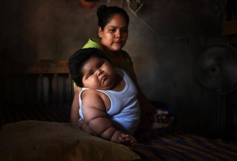 A 10 mesi pesa 28 chili : Luisito, che soffre di una malattia senza nome