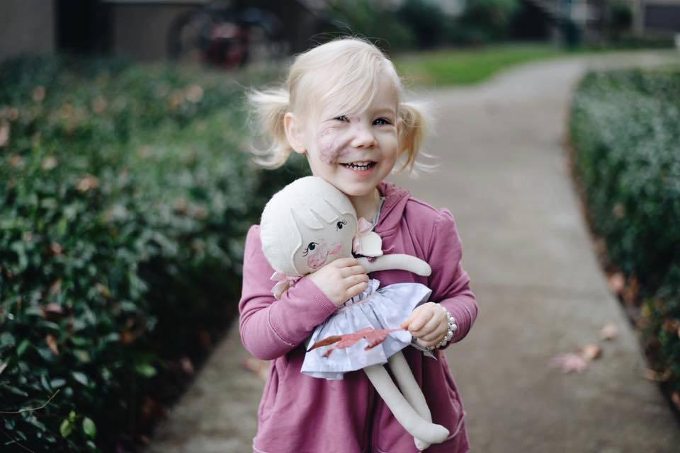 Una bambina con un angioma sul viso riceve un regalo unico (FOTO)