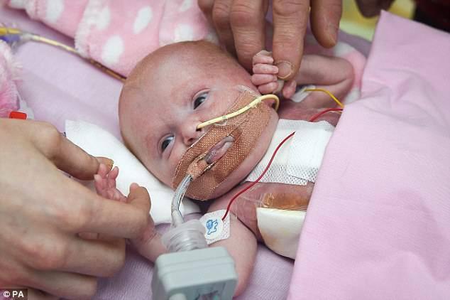 Bimba nasce con il cuore fuori dal petto: salva dopo tre operazioni