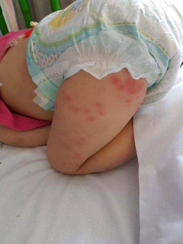 bambina con leucemia 8