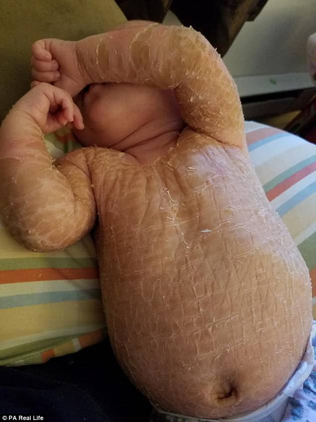 ittiosi bambina candeggina