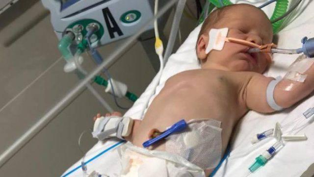 Un bambino ha avuto un ictus al momento della nascita (FOTO)