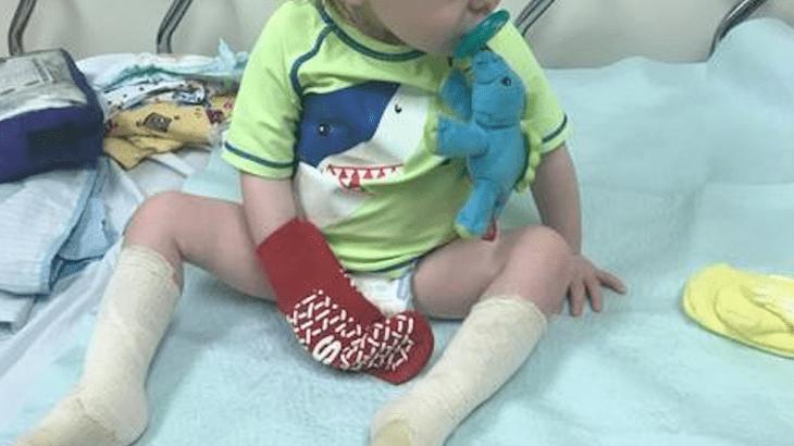 Un bimbo di 1 anno ha ricevuto una brutta ustione camminando scalzo (FOTO)