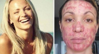 Dopo anni di silenzio parla l'ex modella Cristina Guidetti sfigurata