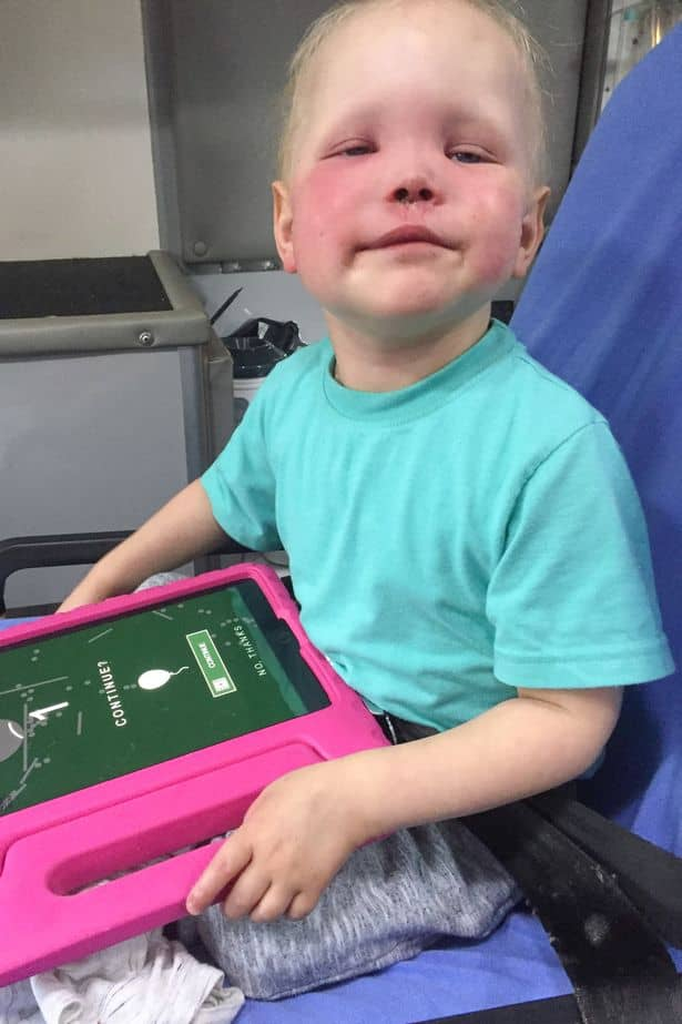 bambino occhio lacrima tumore 2