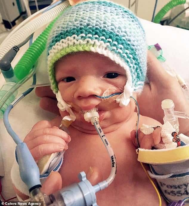 bambino sopravvive dopo che gli staccano la spina 6