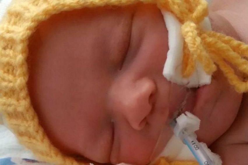 bambino morto dopo parto difficile