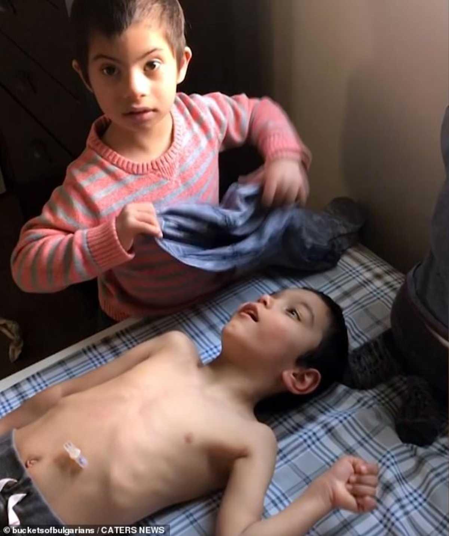 bambino sindrome down aiuta fratellini
