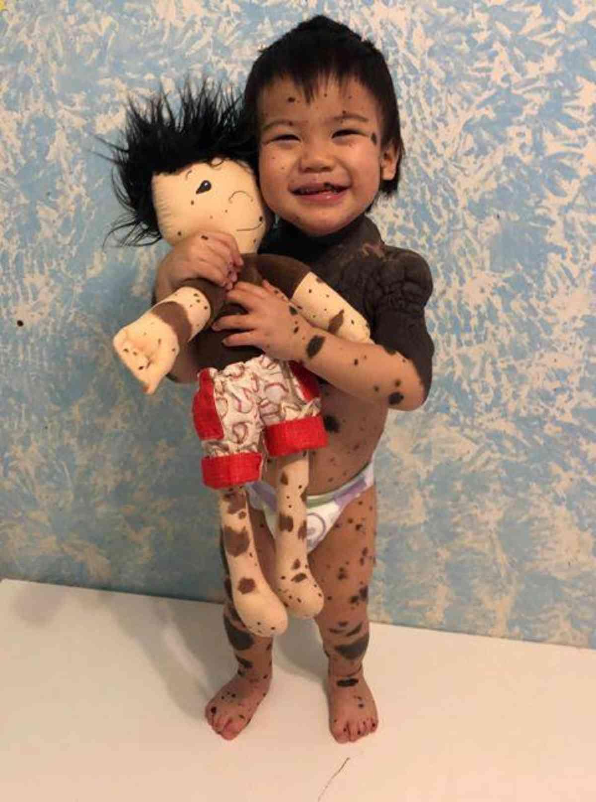 bambole per disabili 5